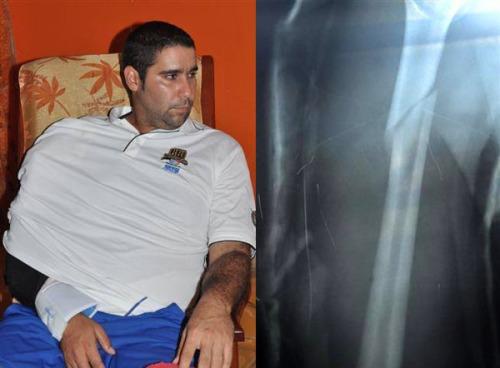 Ismel Jiménez, lesionado